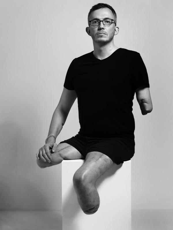 El fotógrafo Giles Duley